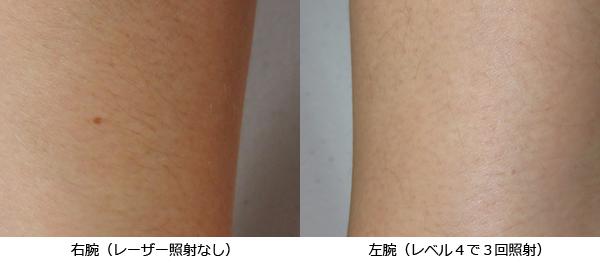 レーザー脱毛器30日後比較
